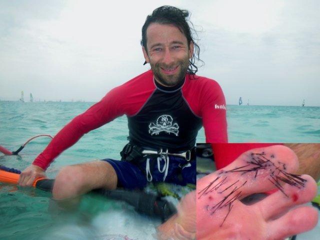 Морские ежи, Египет